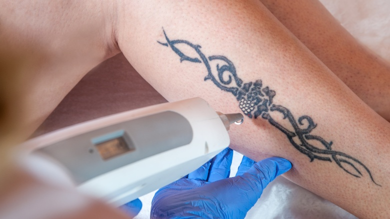 What happens to your body when you get a tattoo for Getting a tattoo removed