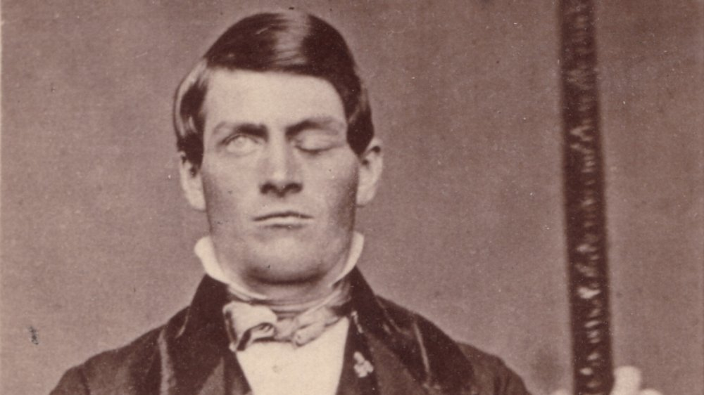 The untold truth of Phineas Gage