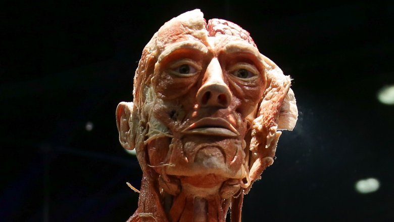 Plastinated body