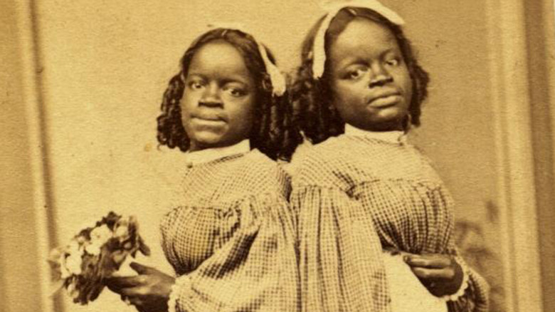 The Most Bizarre Freak Show Acts Ever